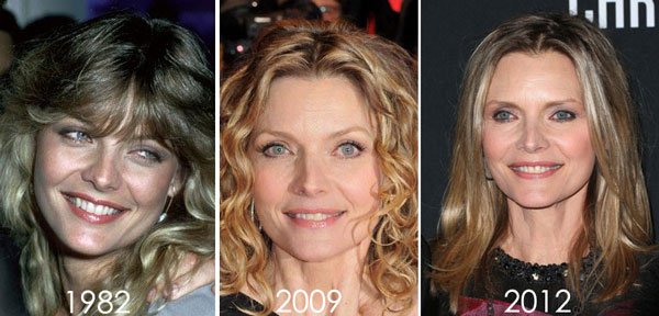 Michelle Pfeiffer before and after plastic surgery (36