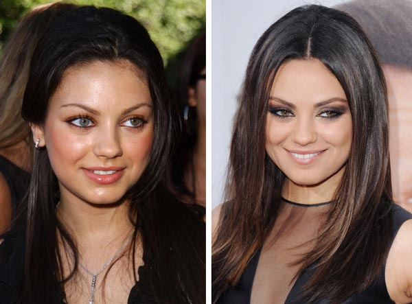 Top 25 Celebrity Nose Jobs: Before & After - Page 7 of 13 ...