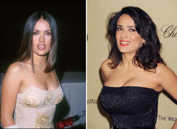 implants Celebrity photos breast