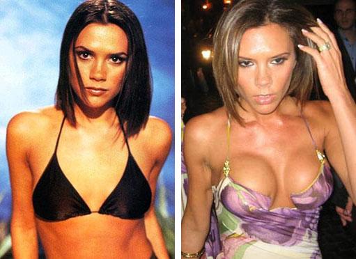 Celebrity Breast Implants Before Amp After Celebrity