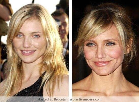 Cameron Diaz Plastic Surgery Before and After - Celebrity ...